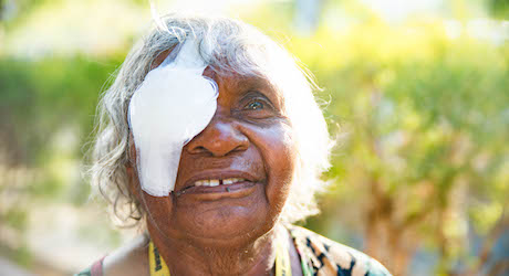 Close the gap in eye health for Indigenous Australians